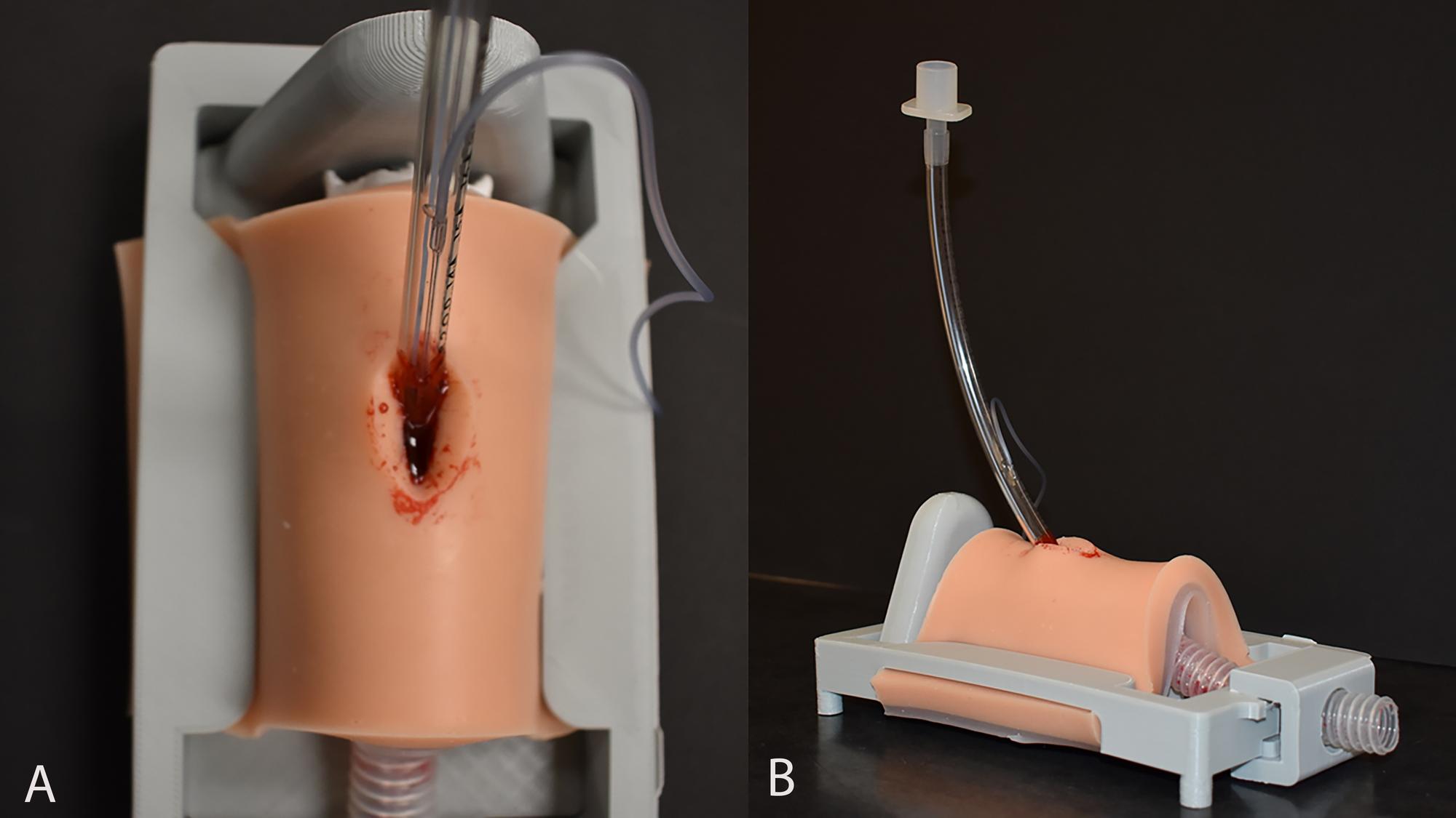 A-bleeding-cricothyrotomy-model-with-an-endotracheal-tube
