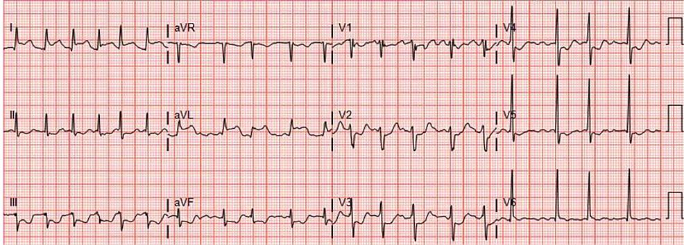 Patient's-electrocardiogram-(EKG)-on-presentation.