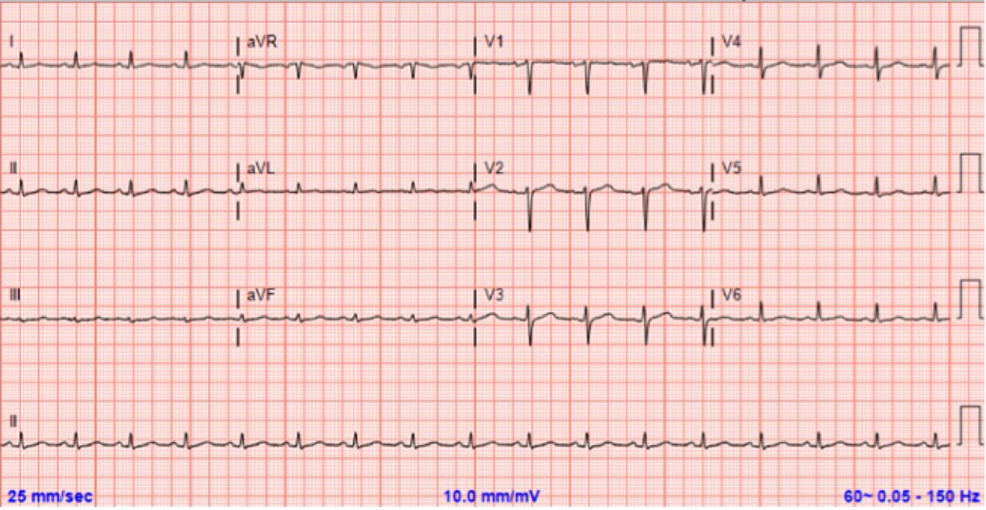 Electrocardiogram-at-admission-without-significant-abnormalities