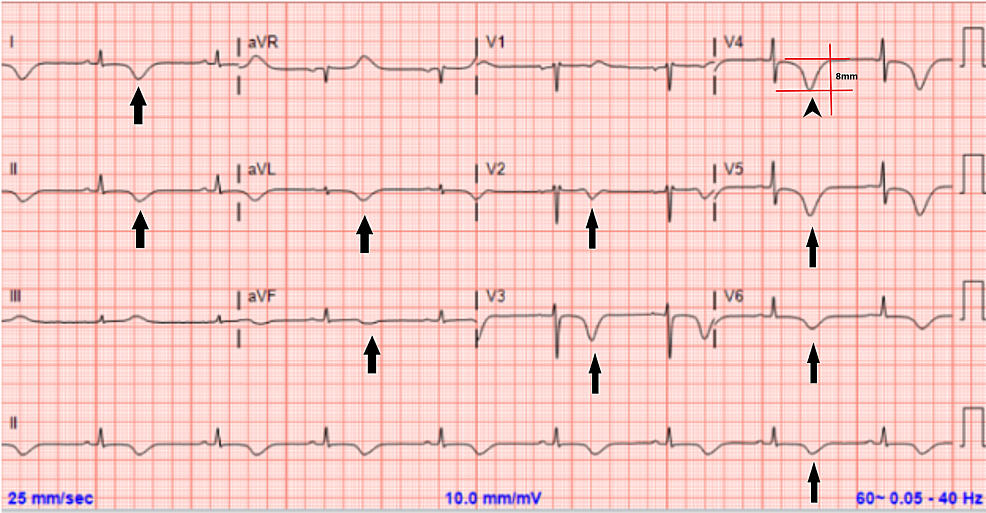 Electrocardiogram-a-few-hours-after-onset-of-pulmonary-edema-symptoms