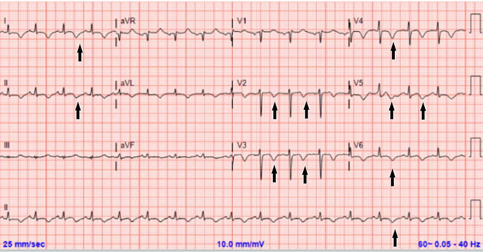 Electrocardiogram-12-hours-after-the-resolution-of-symptoms