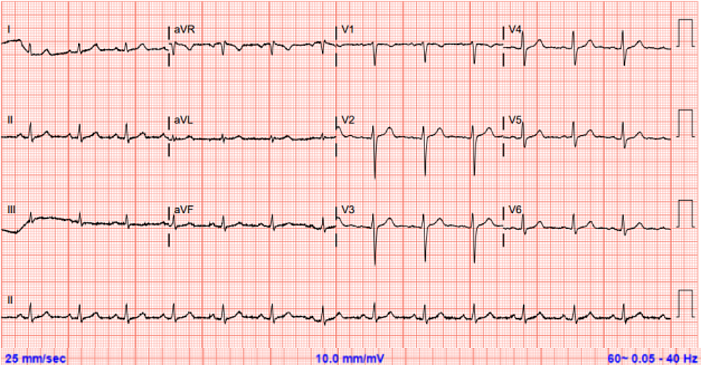 Electrocardiogram-three-months-after-discharge-showing-complete-resolution-of-T-wave-inversion