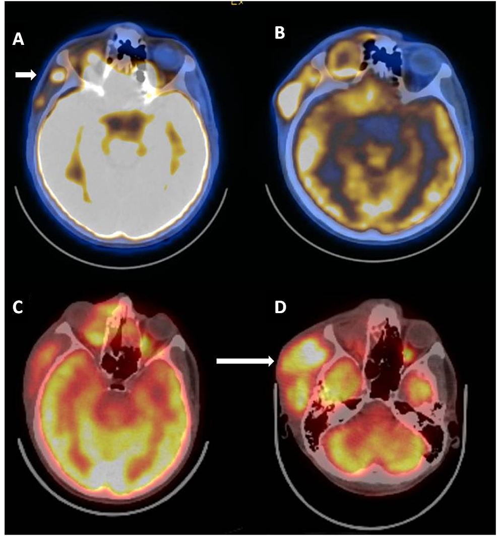 Positron-emission-computed-tomography-(PET-CT)-performed-before,-during,-and-after-chemotherapy-for-recurrence-showing-increased-fluorodeoxyglucose-(DG)-uptake