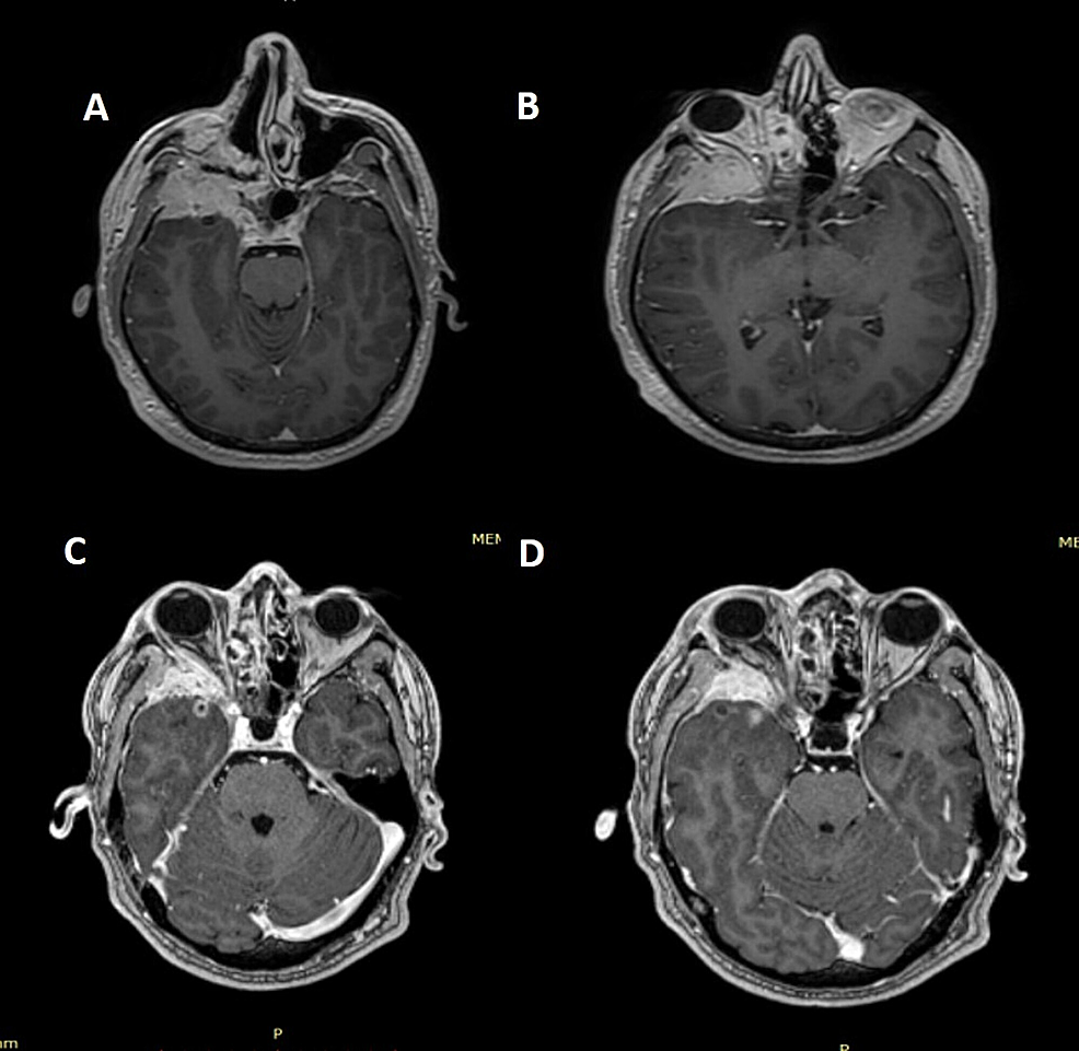 Magnetic-resonance-images-(MRIs)-before-and-after-hypofractionated-stereotactic-radiotherapy
