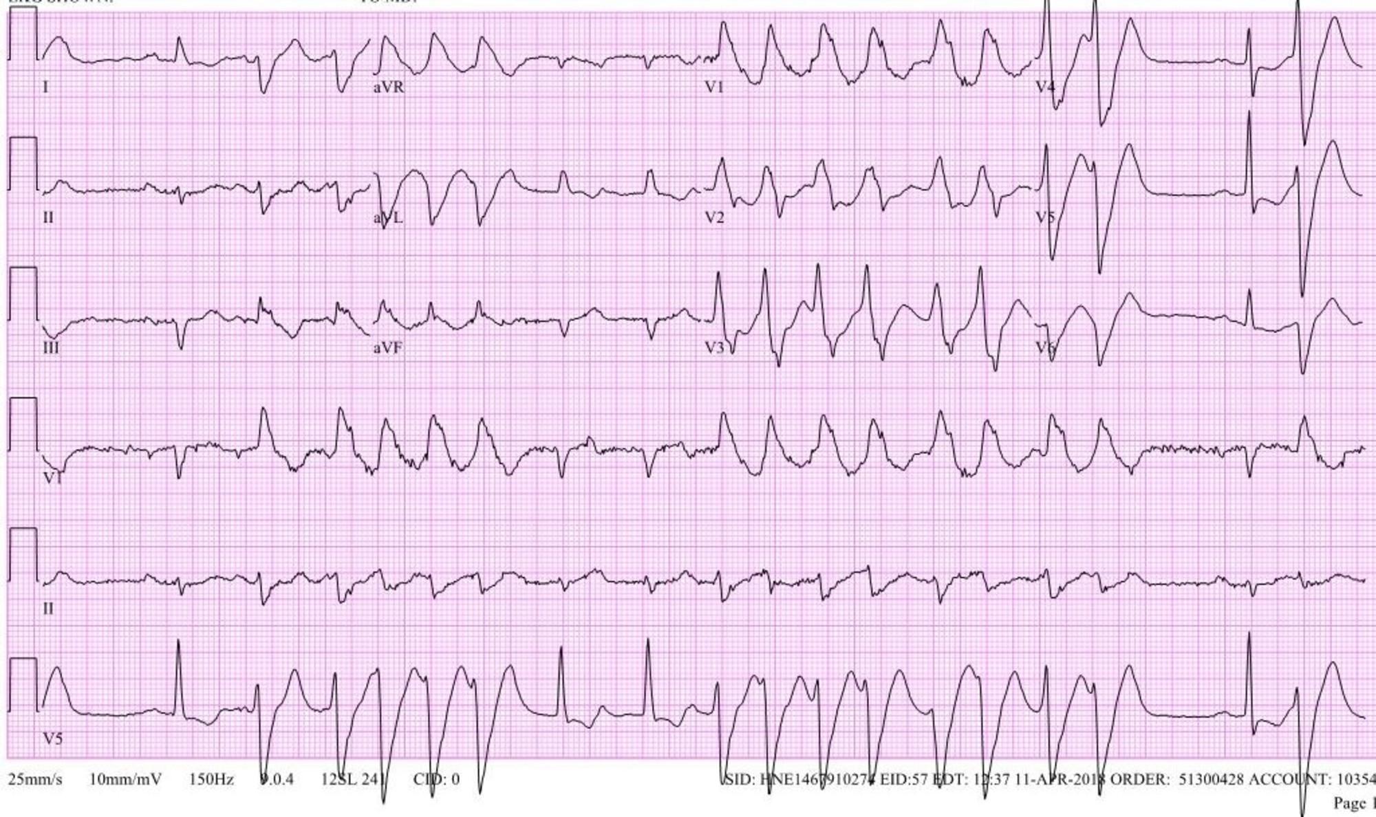 Cureus   Non-ischemic Cardiomyopathy Secondary to Left
