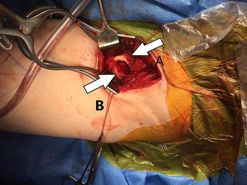 Left-hip-intra-operative.