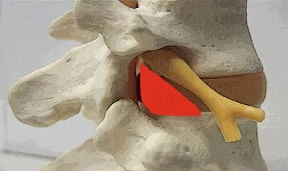 An-anatomic-model-of-the-Kambin's-Triangle-(Kambin's-Triangle-outlined-in-red).
