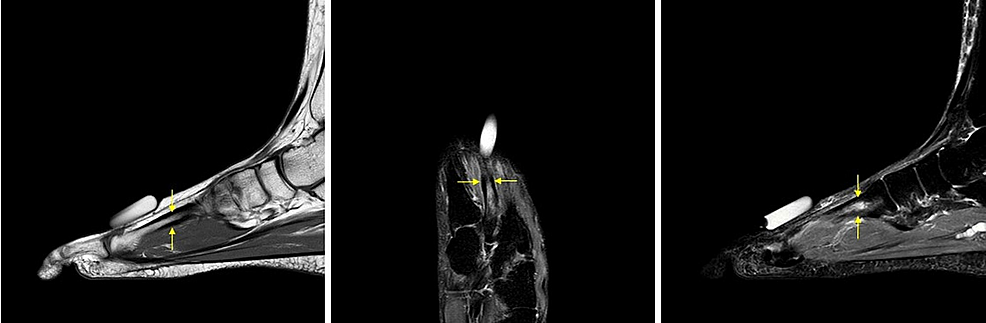 Magnetic-resonance-imaging-(MRI)-showing-stress-reaction-of-the-second-metatarsal-prior-to-cement-injection.