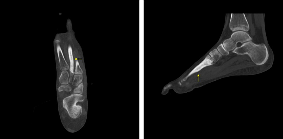 Pre-operative-computed-tomography-(CT)-showing-cement-in-the-second-metatarsal.
