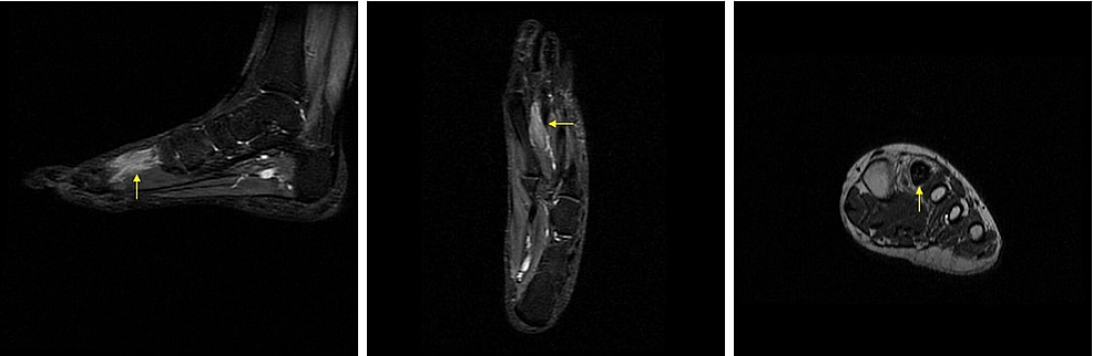 Pre-operative-magnetic-resonance-imaging-(MRI)-showing-cement-in-second-metatarsal.
