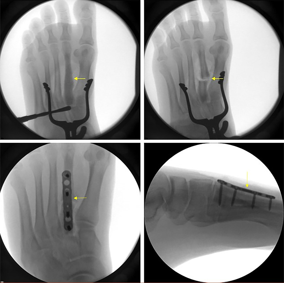Intraoperative-X-rays.