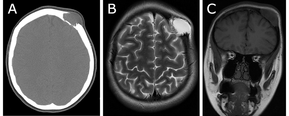 CT-scan-and-MRI-prior-to-surgery.