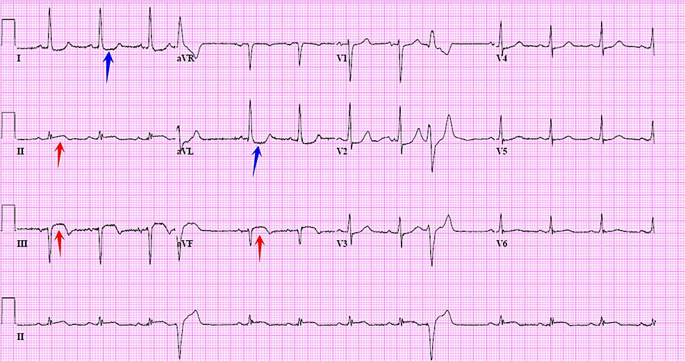 Electrocardiogram-(EKG)-upon-admission