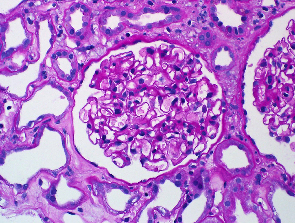 Light-microscopy-showed-that-glomeruli-have-open-capillary-loops-with-no-evidence-of-cellular-crescents,-fibrinoid-necrosis,-or-endocapillary-hypercellularity.-The-tubulointerstitial-compartment-is-marked-by-severe-acute-tubular-injury,-with-tubular-dilatation,-epithelial-simplification,-cytoplasmic-vacuolization,-and-nuclear-reactive-changes.-There-is-mild-interstitial-edema-and-patchy-inflammatory-infiltrate.