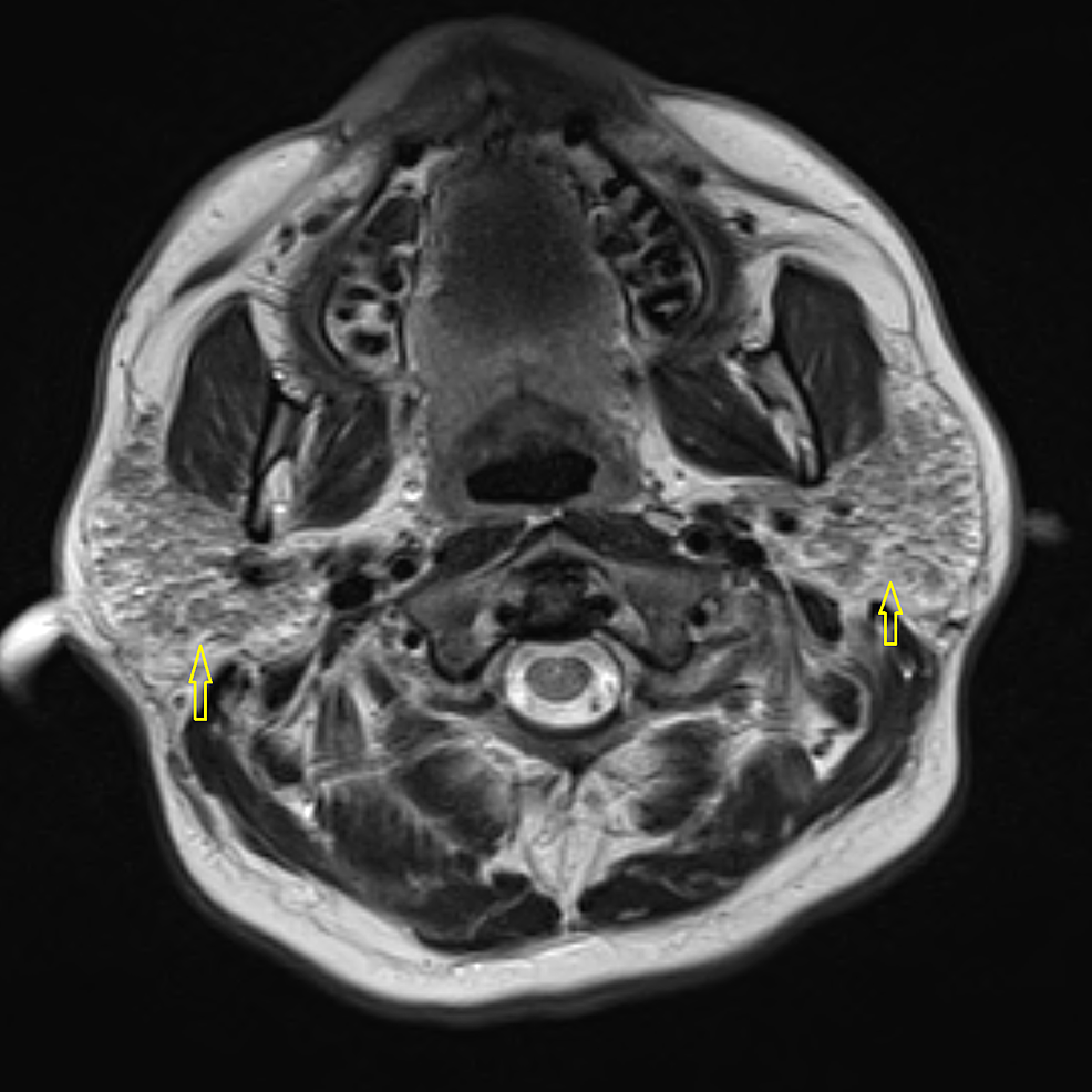 T-2-weighted-image-of-the-parotid-gland-showing-hypointense-nodules-(arrows)-in-the-bilateral-parotid-glands-suggestive-of-parotitis
