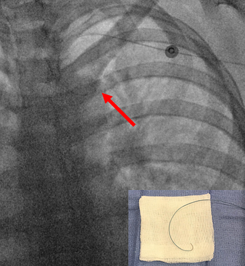 The-steerable-microcatheter-was-torqued-with-the-tip-(red-arrows)-pointing-into-the-descending-aorta-for-easy-passage-around-the-aortic-arch-into-the-descending-aorta-without-a-wire.-Bottom-right-shows-a-back-table-image-of-the-catheter-with-maximum-torque-applied.