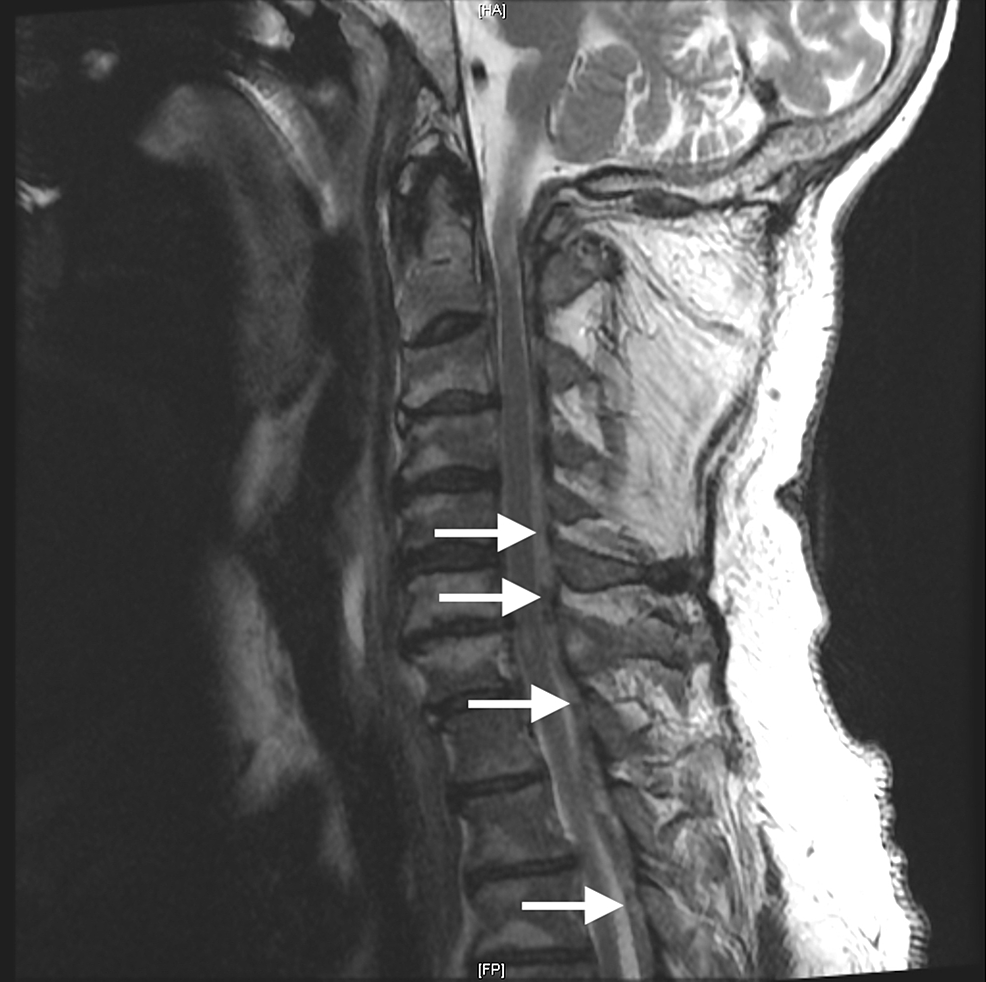 Sagittal-T2-magnetic-resonance-imaging-(MRI)-of-the-cervical-spine,-with-C3-to-C7-involved-in-the-pathology-described-in-this-report.