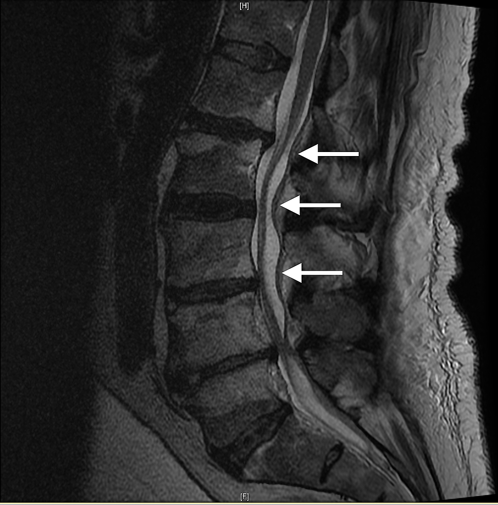 Sagittal-T2-magnetic-resonance-imaging-(MRI)-of-the-lumbar-sacral-spine,-with-L4-to-S1-involved-in-the-pathology-described-in-this-report.