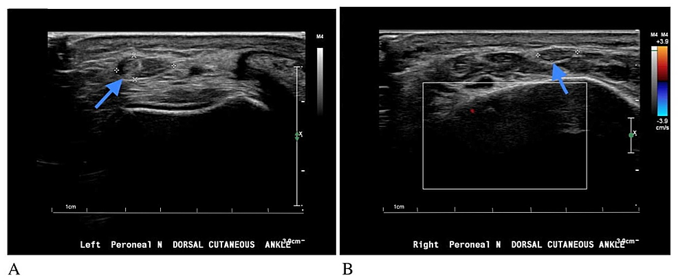 Images-of-neuromuscular-limited-ultrasound-(Phillips,-Affiniti-50G)-using-high-frequency-transducer-(7-14-MHz).