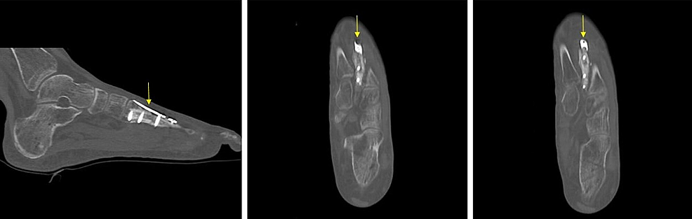 Post-operative-computed-tomography-(CT)-scan-after-revision-open-reduction-and-internal-fixation-with-plate-and-screws.