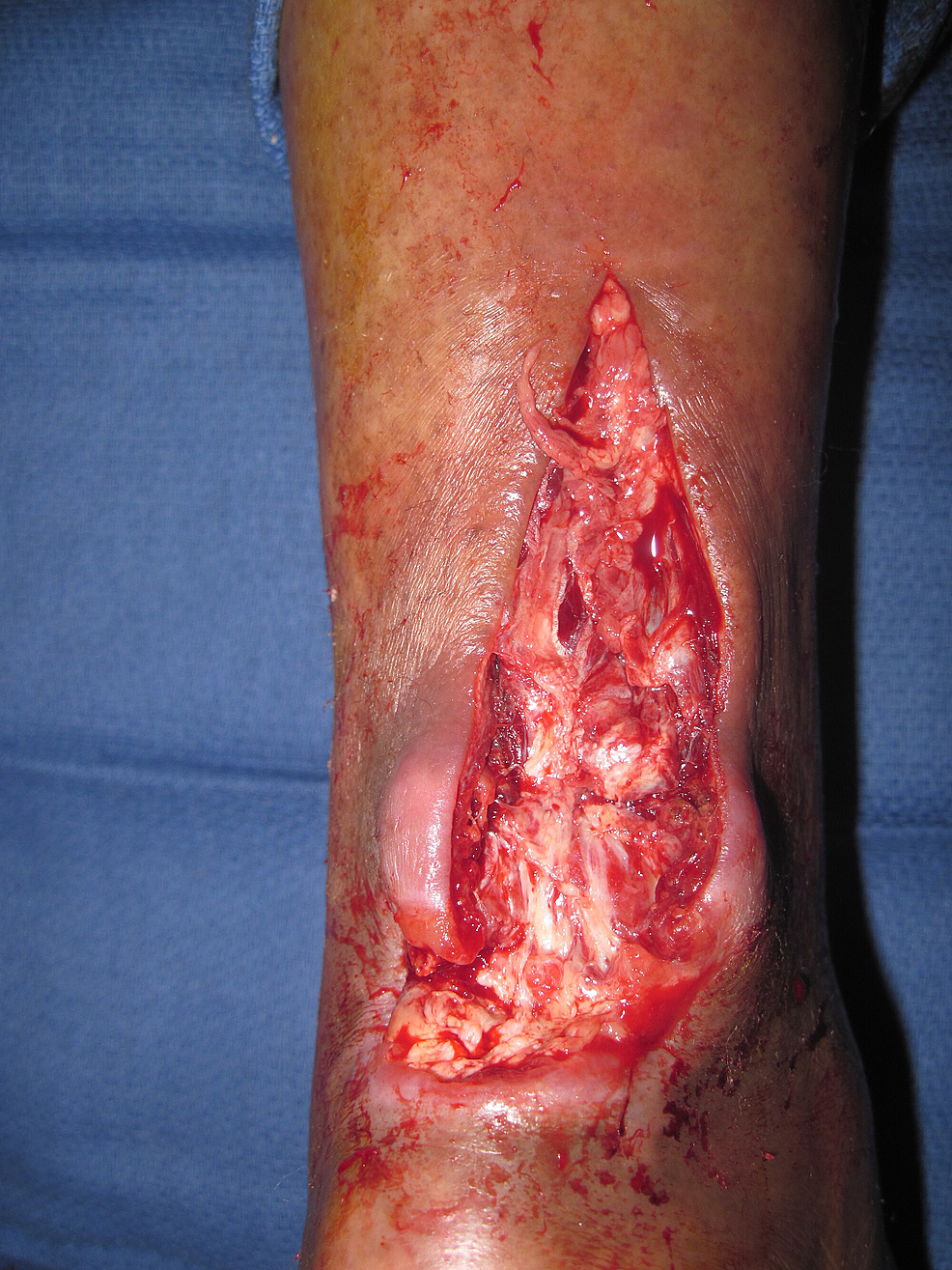 Following-incision-and-drainage.-Note-the-large-area-of-destruction-of-portions-of-the-Achilles-tendon.
