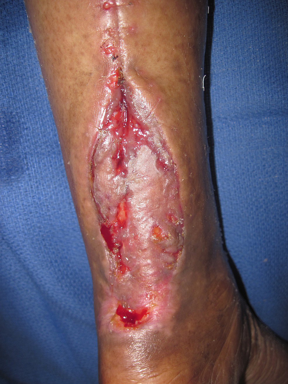 Treated-with-NPWTi-d-and-skin-graft.-Note-a-good-skin-graft-has-taken-over-much-of-the-tendon.