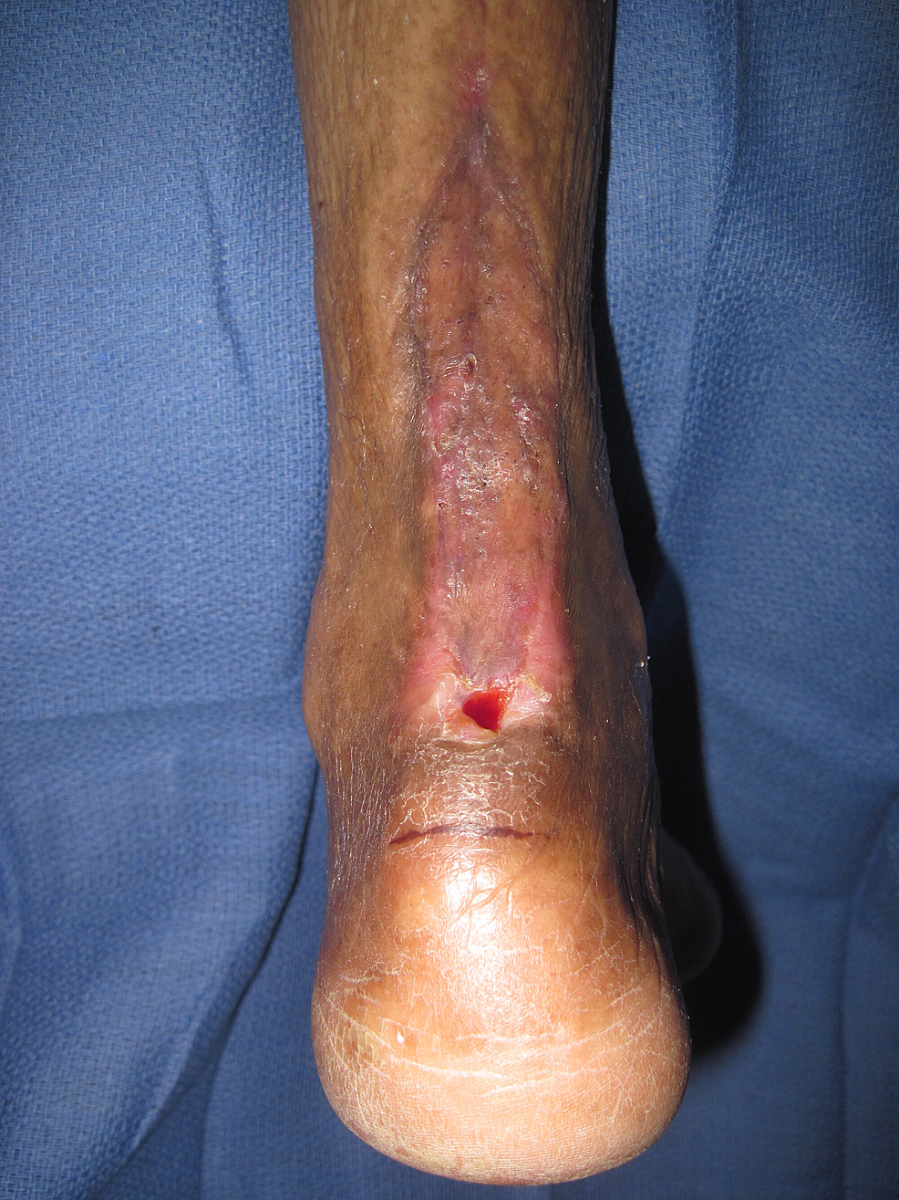Two-months-after-treatment.
