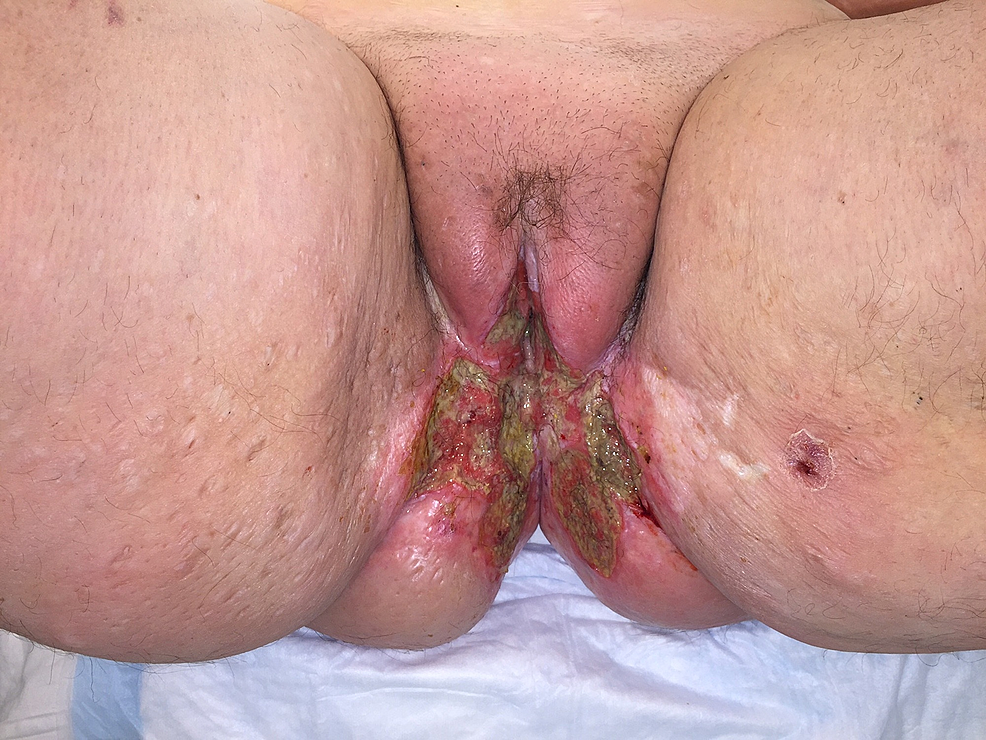 Highly-invasive-squamous-cell-carcinoma-of-the-vulva-that-recurred-despite-radiation-therapy-in-a-morbidly-obese-female.