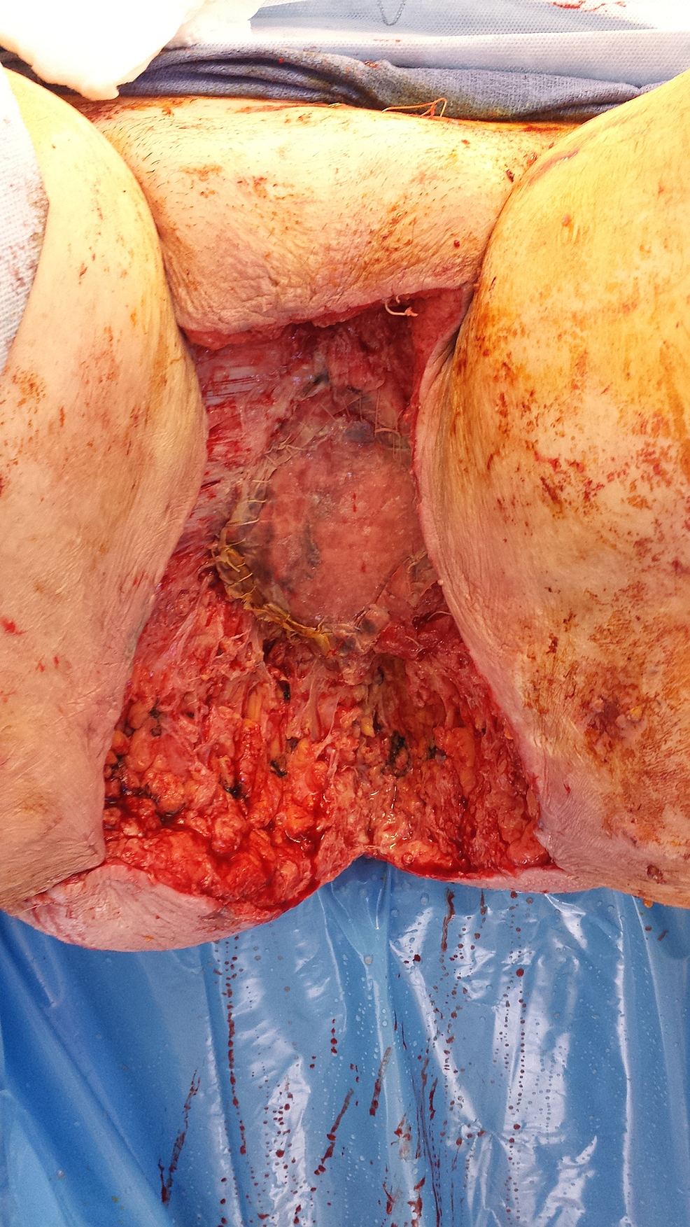 Following-surgical-resection-of-the-tumor-with-partial-closure. Note-the-Polyglactin-910-mesh-covering-an-omental-flap-at-the-pelvic-inlet.