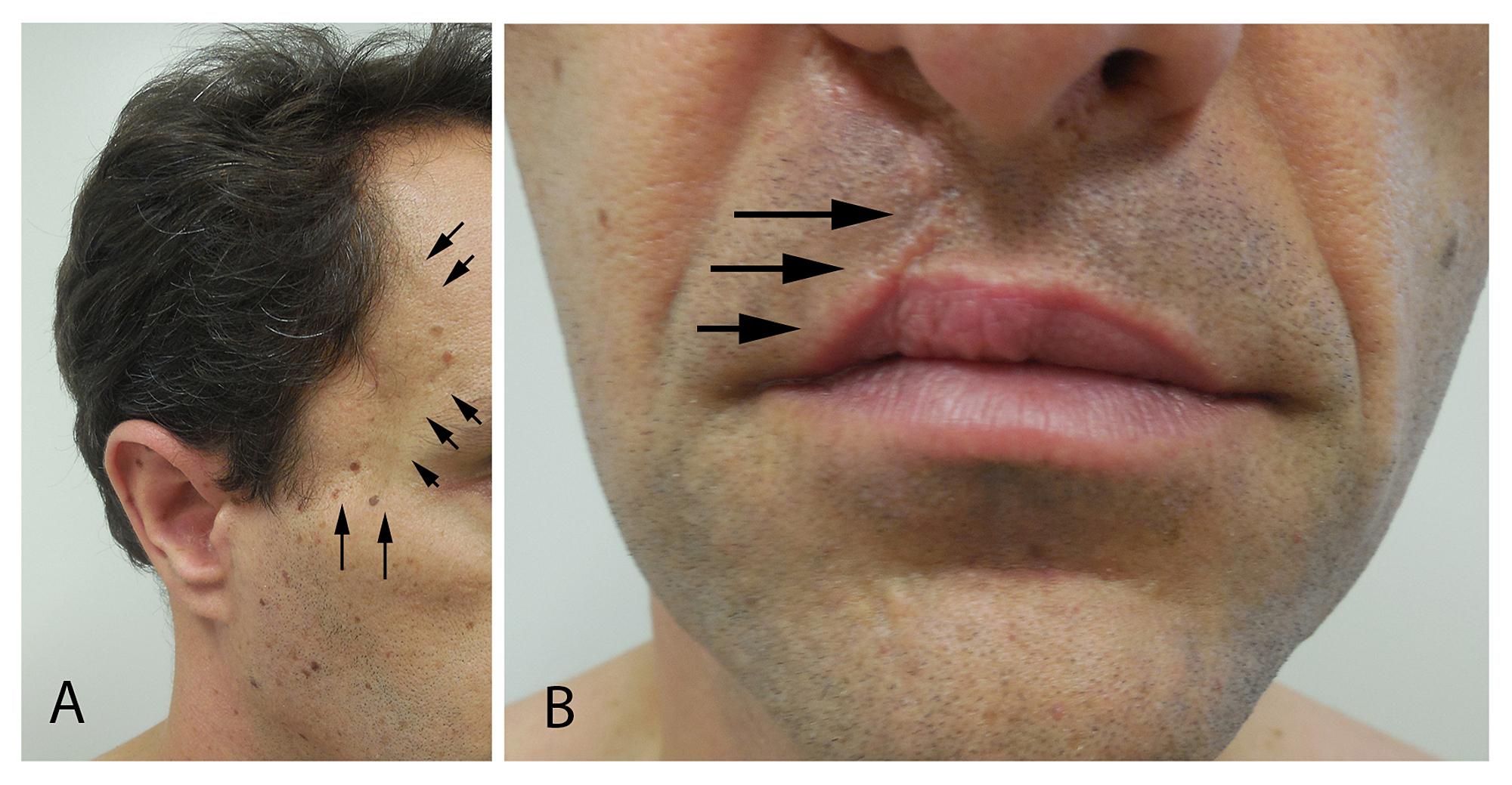 cureus | a man with juvenile nasopharyngeal angiofibroma, vestibular