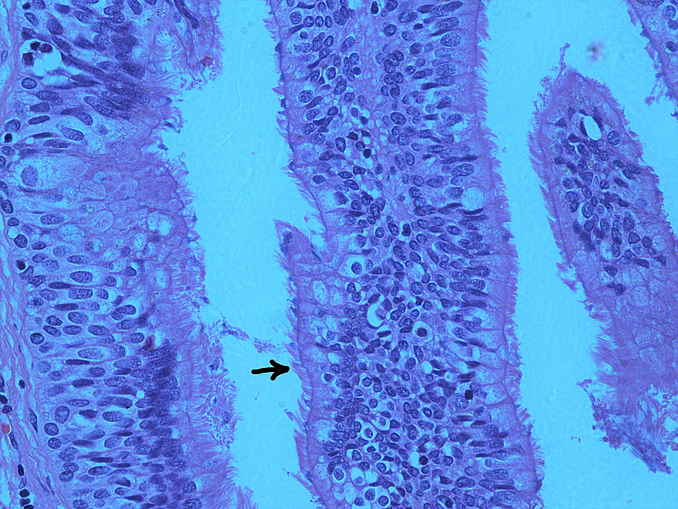 Haematoxylin-and-eosin-(H&E)-section-of-the-pancreatic-cyst-showing-respiratory-epithelium-(ciliated-pseudostratified-columnar-epithelium);-the-arrow-points-to-the-cilia-(×40)