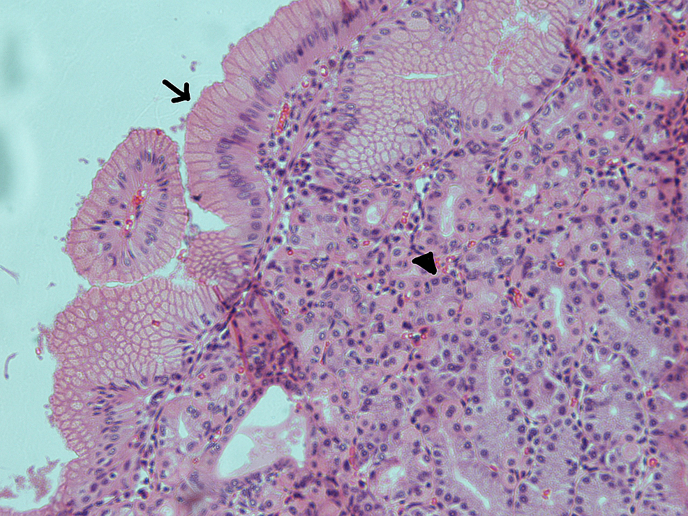Haematoxylin-and-eosin-(H&E)-section-of-the-pancreatic-cyst-showing-gastric-epithelial-lining;-the-arrow-shows-columnar-epithelium-and-the-arrowhead-points-to-a-gastric-gland-(×20)