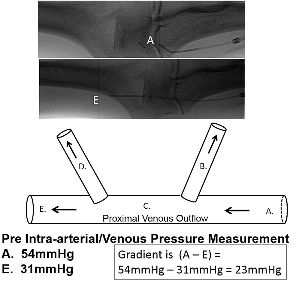 Depiction-of-illustrated-venous-pressure-gradient-across-escape-veins-versus-fistulography.