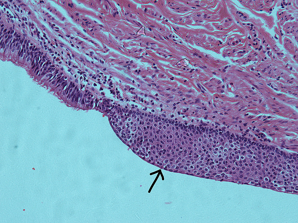 Haematoxylin-and-eosin-(H&E)-section-of-the-pancreatic-cyst-demonstrating-squamous-metaplasia-(arrow)-(×20)