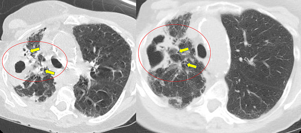 Initial-axial-computed-tomography-of-chest-showing-right-upper-lobe-cavitary-opacity-(circled)-with-adjacent-bronchiectasis-(yellow-arrows)