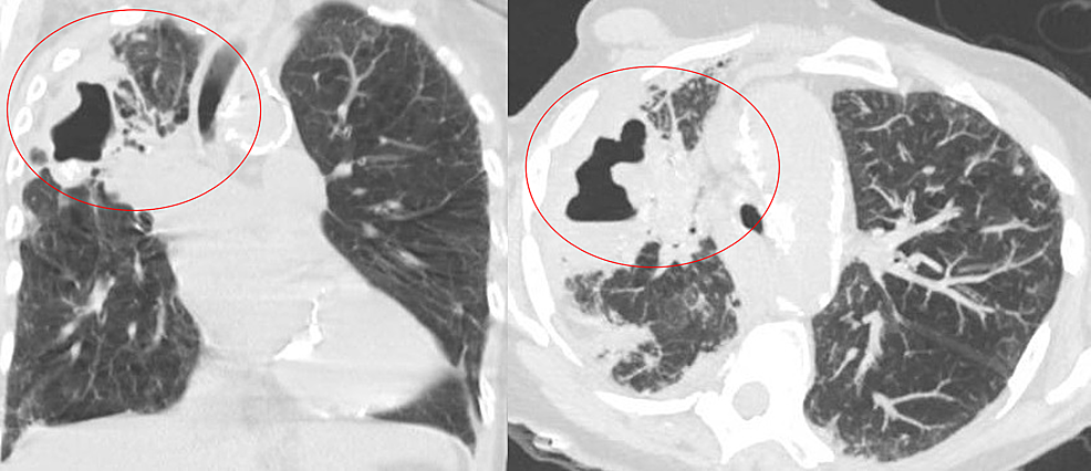 Repeat-computed-tomography-of-chest-showing-right-upper-lobe-consolidation-with-slight-interval-enlargement-of-the-right-upper-lobe-cavitary-lesion-(circled)