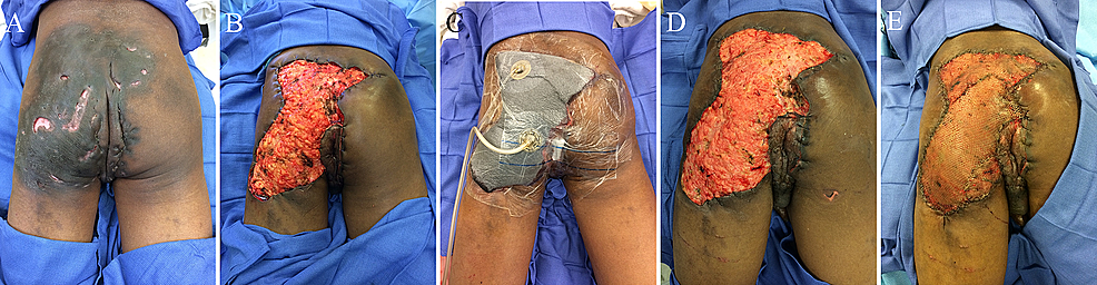 Patient-with-extensive-disease-in-the-left-buttock-and-perineum-(A)-who-underwent-wide-local-excision-with-tissue-advancement-(B)-and-negative-pressure-wound-therapy-with-instillation-and-dwell-time-(NPTWi-d)-placement-(C);-healthy-granulating-base-was-found-upon-NPTWi-d-takedown-(D)-and-autologous-skin-was-grafted-onto-the-wound-base-(E)