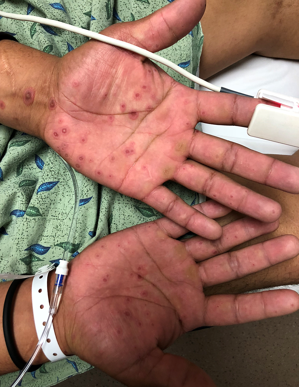 Palm-Lesions-Bilateral