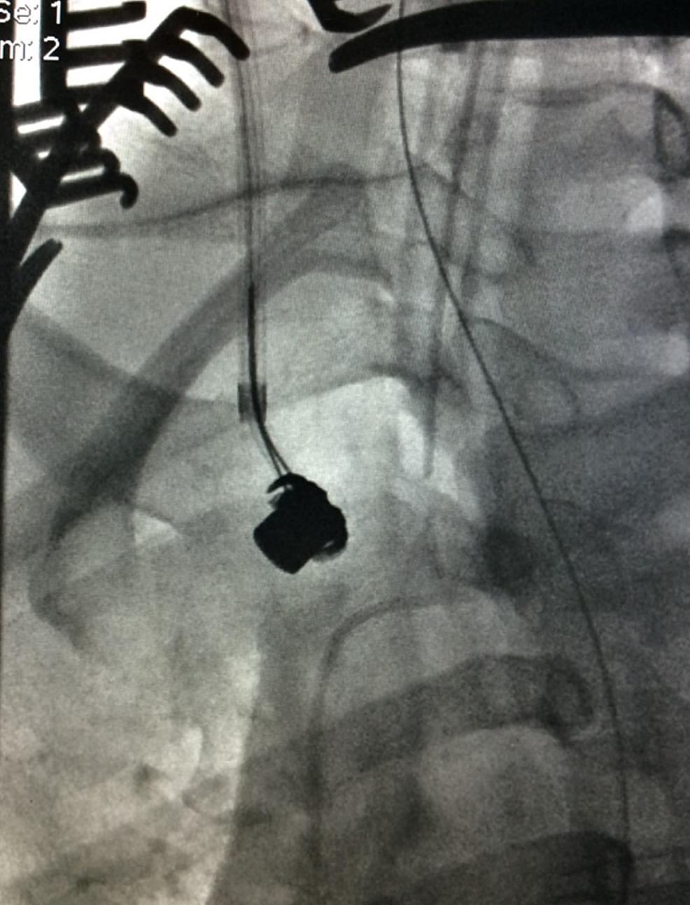 Ascent-of-Snared-Bullet-Embolus-on-Fluoroscopy
