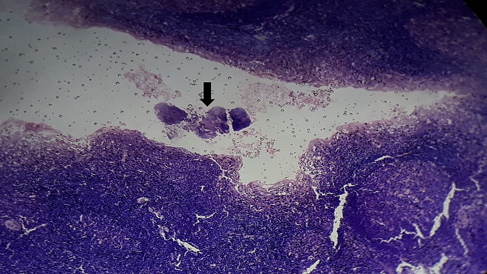 Histopathological-examination-showing-the-colonization-of-the-tonsillar-crypt-(black-arrow)-by-Actinomycotic-colonies-(Hematoxylin-and-Eosin,-100X)