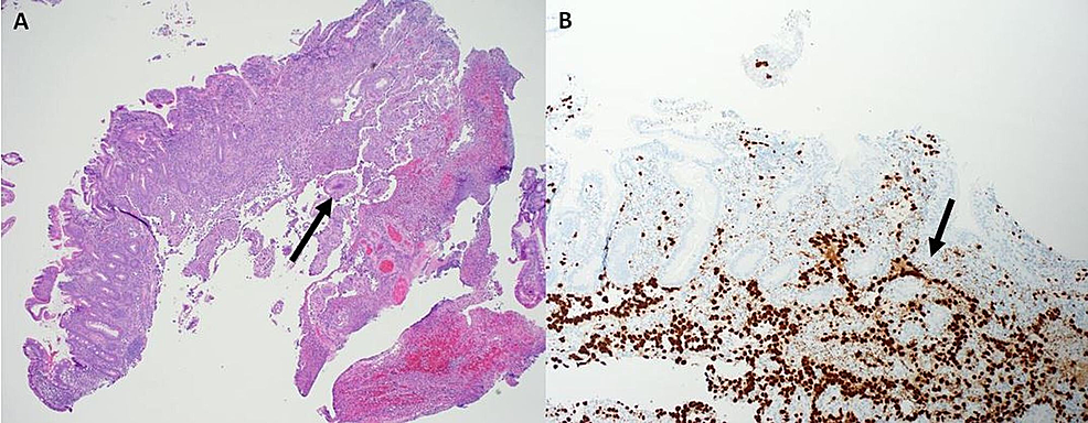 Duodenal-Biopsy