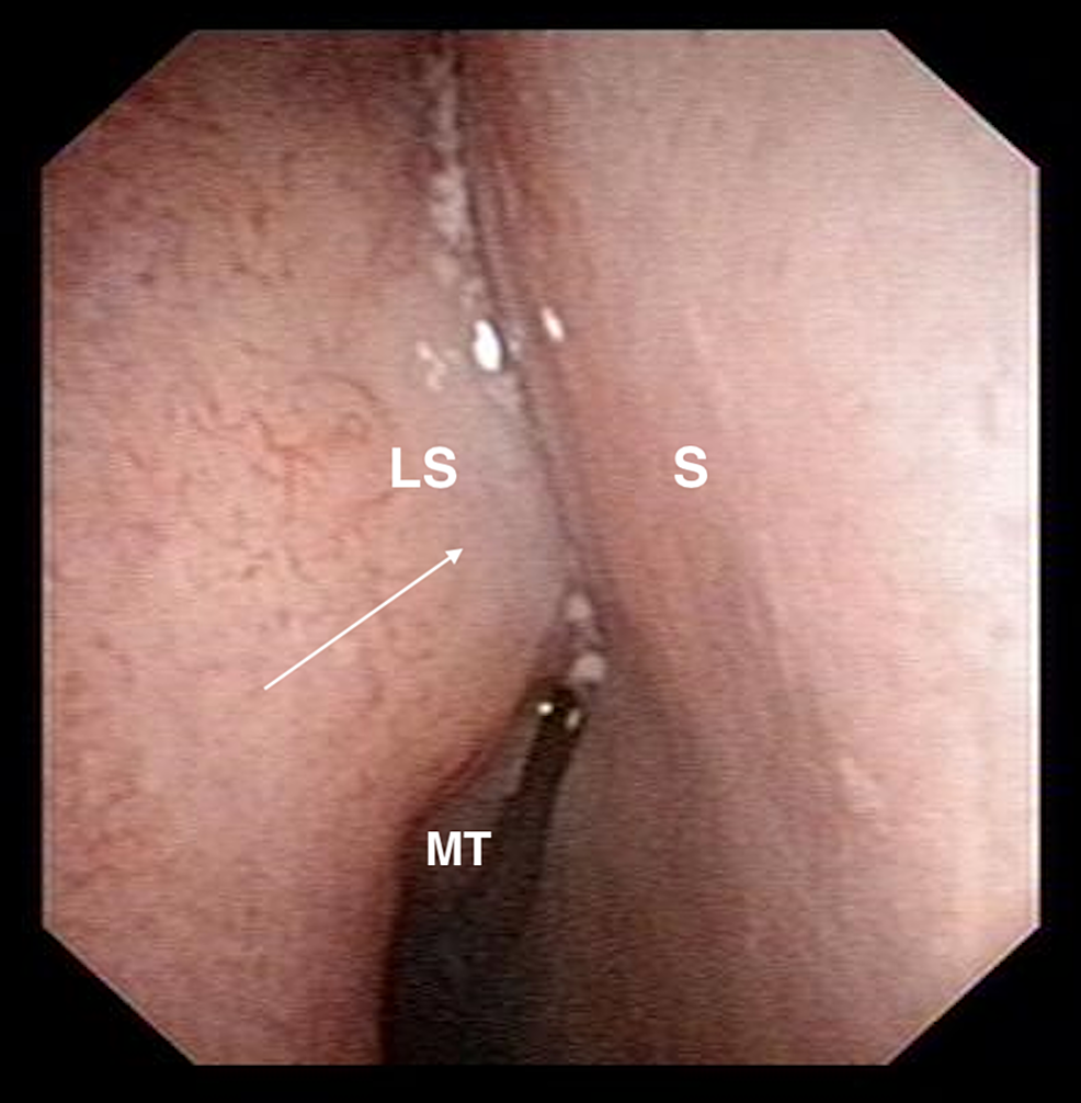 Nasoendoscopy-image-showing-bulge-over-right-lateral-nasal-wall-at-approximate-site-of-the-lacrimal-sac-with-normal-overlying-mucosa.