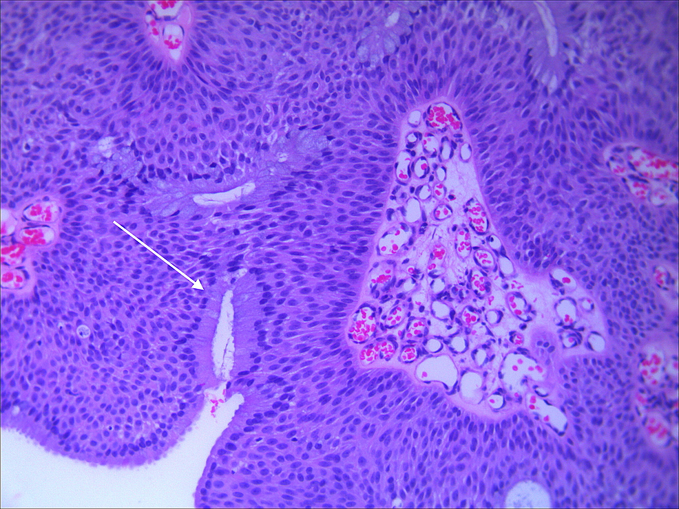 H&E-stain-of-biopsy-specimen-showing-inverted-growth-pattern.