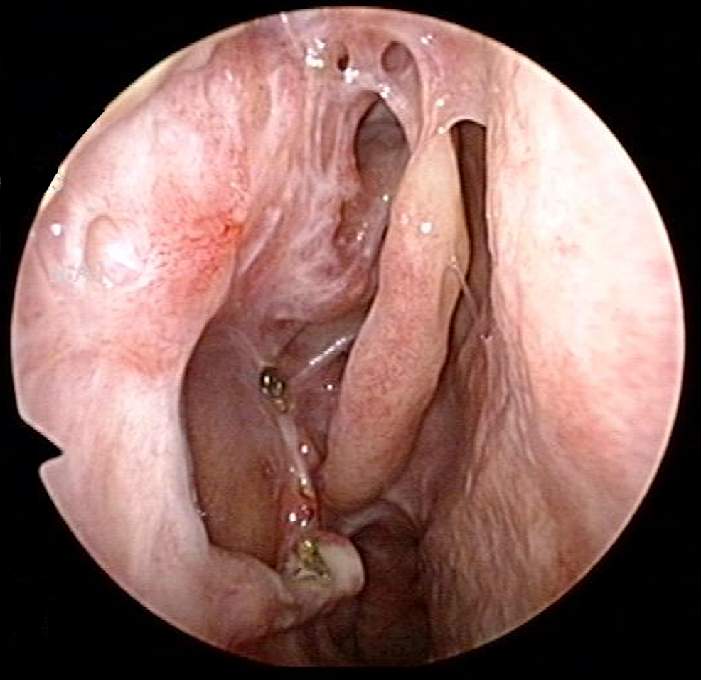 Nasoendoscopy-image-of-right-lateral-nasal-wall-five-years-post-operatively,-showing-no-evidence-of-tumor-recurrence.