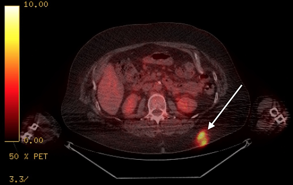 Positron-emission-tomography-computed-tomography-(PET/CT)-showing-hypermetabolic-activity-in-the-subcutaneous-fat-of-the-upper-left-buttock-area.