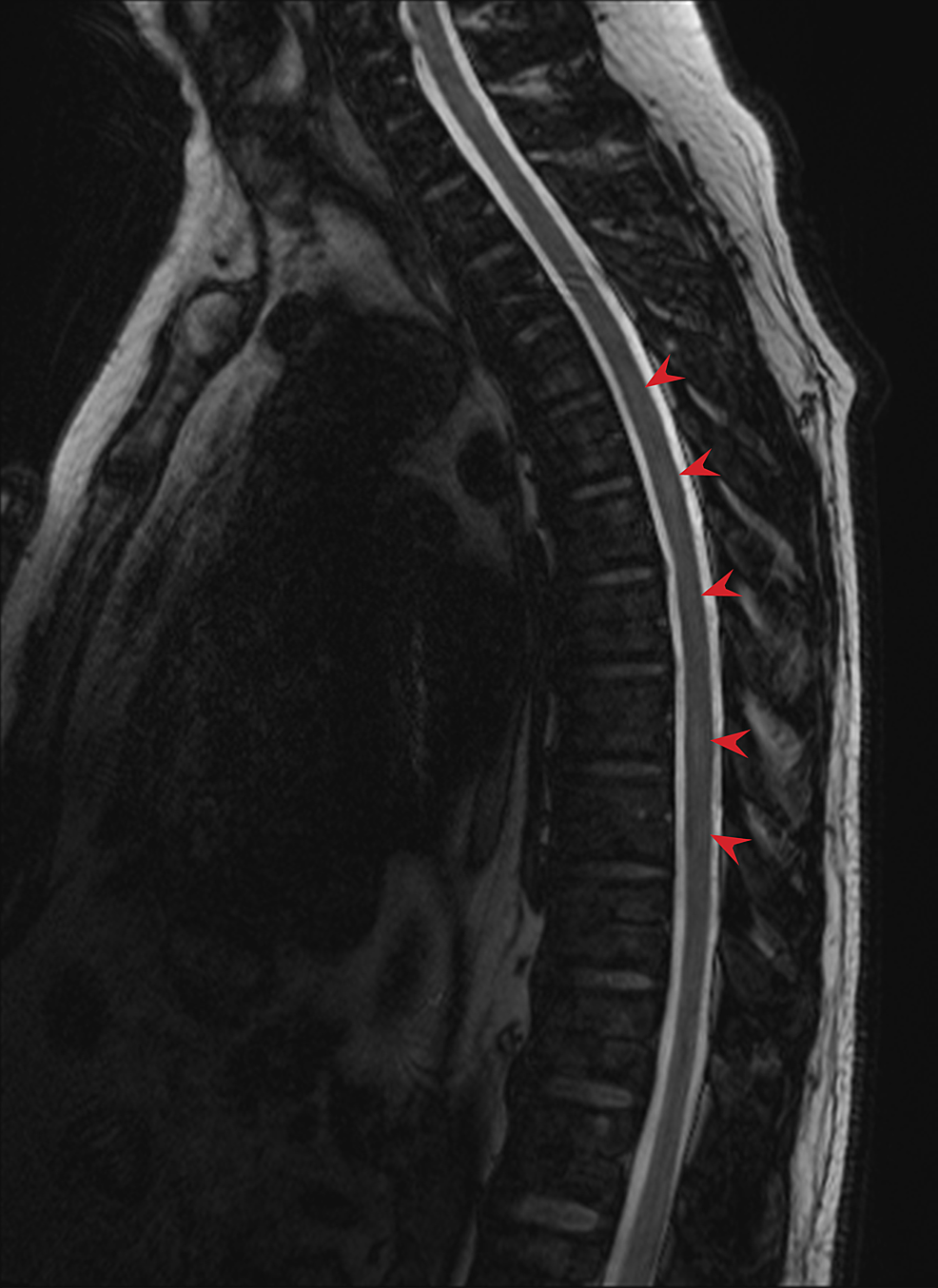 Indeterminate-signal-abnormality-at-multiple-levels-(arrows)-of-the-thoracic-and-lumbar-spine-on-T2-weighted,-Dixon-water-fat-opposed-MRI.-