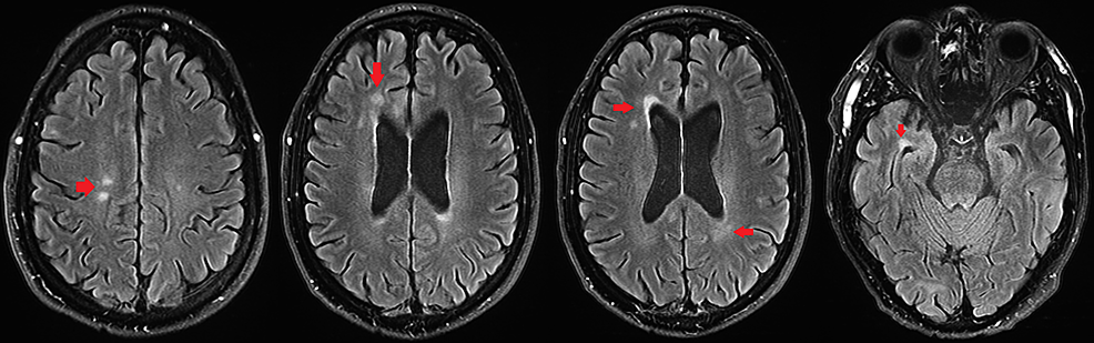 Axial-fluid-attenuated-inversion-recovery-(FLAIR)-T2-weighted,-fat-suppressed-brain-MRI-demonstrating-multiple-foci-of-juxta-ventricular-signal-hyperintensity-(arrows).