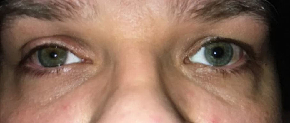 Eye-examination-showing-miosis,-partial-ptosis,-and-enophthalmos-of-the-right-eye