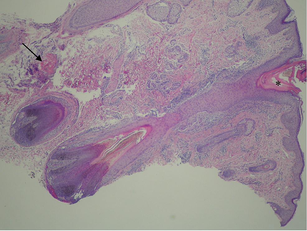 Keratosis-pilaris-and-pilomatricoma.-