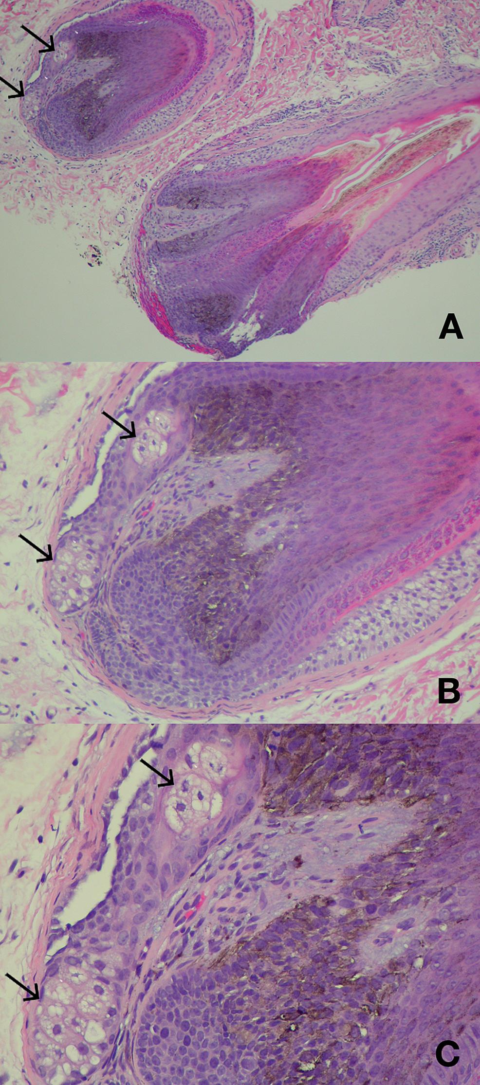 Ectopic-sebaceous-glands-in-hair-papilla.-
